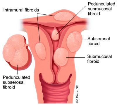 Az endometriózis csendes (alattomos) jelei